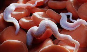 8 dấu hiệu cảnh báo cơ thể nhiễm ký sinh trùng